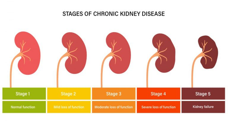 CKD - Stages of Chronic Kidney Disease